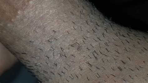 I have these bumps near my crotch and shaft area | Sexual