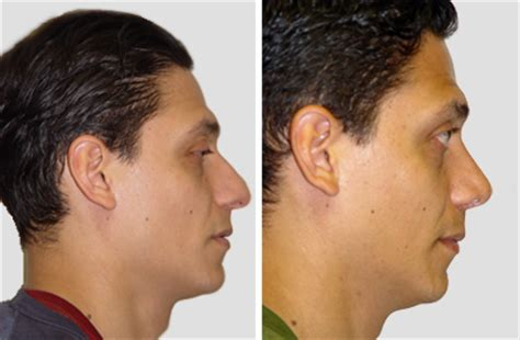 Best Rhinoplasty Surgeon in NYC  Nose Surgery in New York