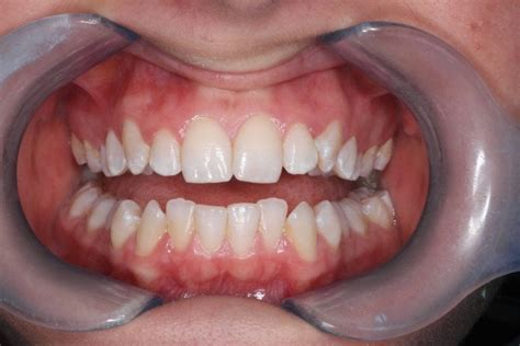 Invisalign   Caerphilly   Amazing Results   Finance Available