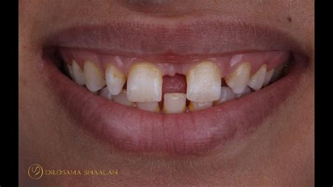 Combined approach for large diastema closure part II - YouTube