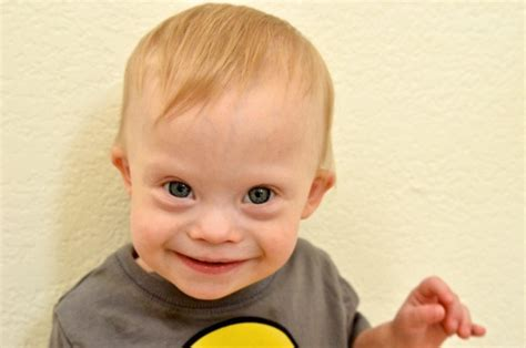 Indicators Of Down Syndrome In Pregnancy