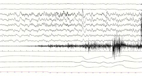 An Unusual Event During a CPAP Titration Study