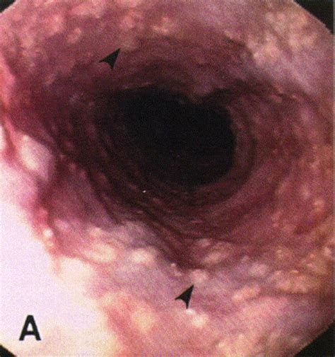 Esophageal ectopic sebaceous glands: Endoscopic and