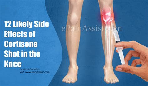 12 Likely Side Effects of Cortisone Shot in the Knee
