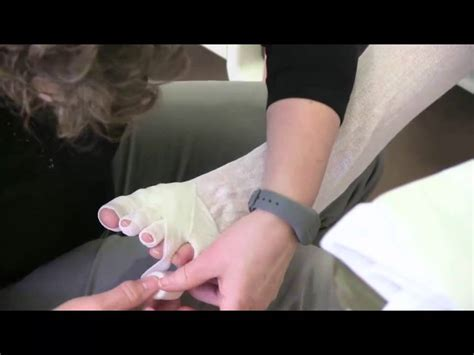 Wrapping Lower Extremity or Leg for Lymphedema Management