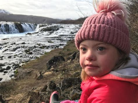 Why Down syndrome in Iceland has almost disappeared - CBS News
